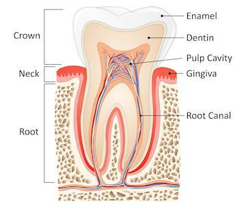 Diagram showing the process of a root canal