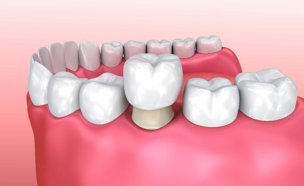 Diagram of how a dental crown works
